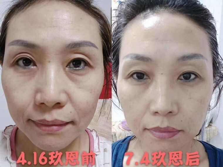 什么是微店铺_玖恩是一款什么产品?_微店微信化妆品代理_微信货源网